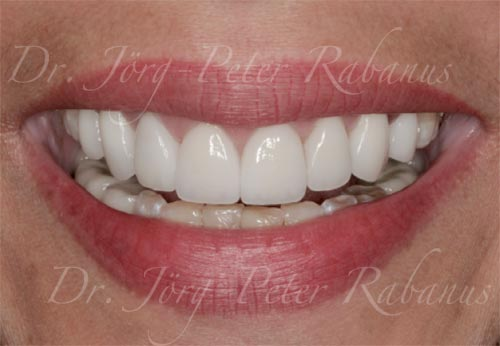 Best Porcelain Veneers San Francisco 1