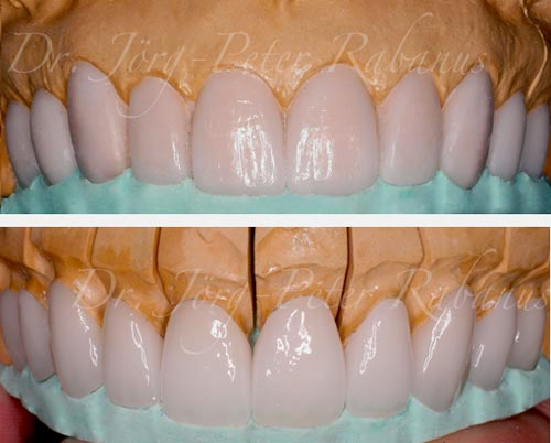 From Wax-Up to Porcelain Veneers