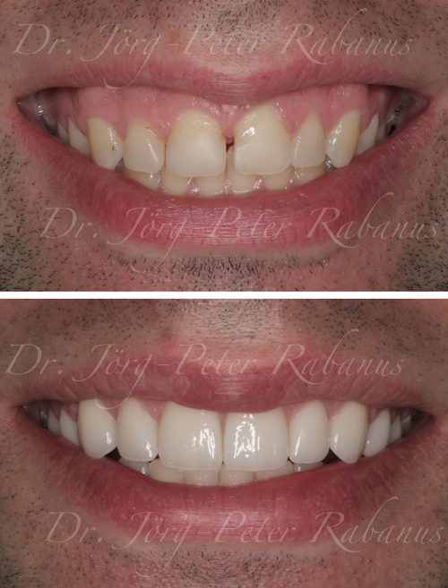 Smile Design with Porcelain Veneers