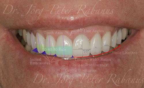 Porcelain Veneers Smile Design 1