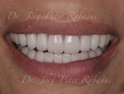 Severely stained teeth after treatment with dental porcelain veneers