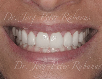 proportionate porcelain laminates placed by cosmetic dentist
