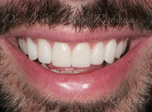 best cosmetic dentist for smile makeovers for missing teeth