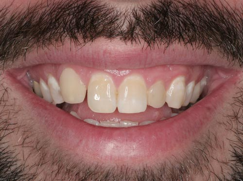 best porcelain veneers for missing teeth