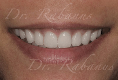 new porcelain veneers of stained teeth