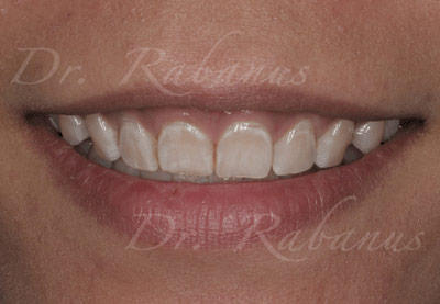 old porcelain veneers of stained teeth