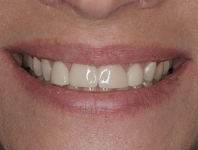 disproportionate porcelain restorations placed by general dentist