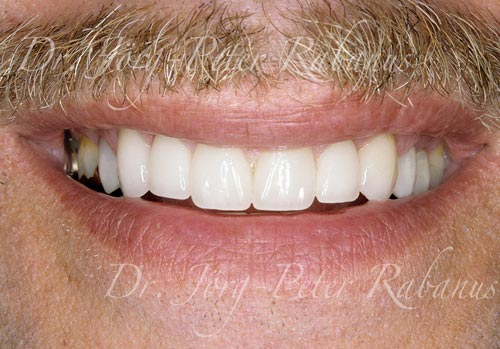 worn and stained teeth after cosmetic dentistry